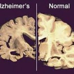 Top five things you can do today to combat Alzheimers